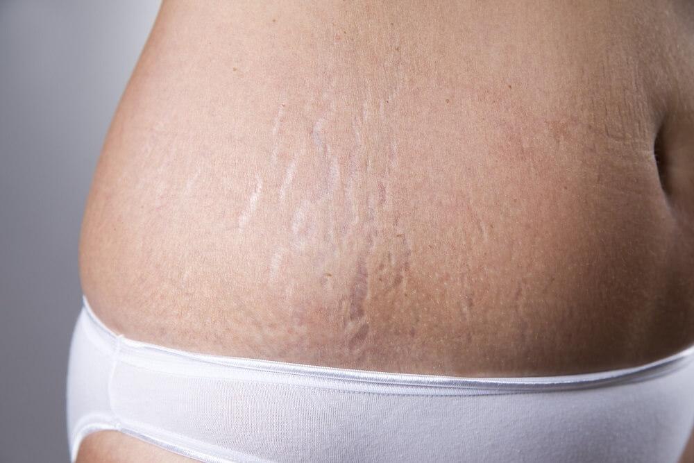 brzuch przed liposukcją